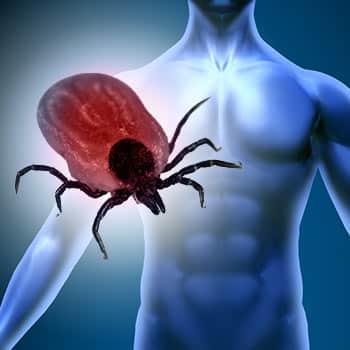 Chronische Borreliose / Lyme-Arthritis